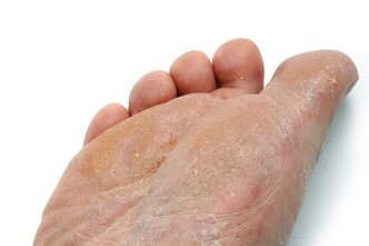 Wilton Podiatrist | Wilton Athlete's Foot | CT | WILTON FOOTCARE ASSOCIATES |